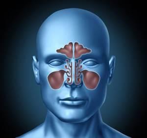 Sinüzit-tedavisi