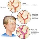 Migren Nedir? Göz Migreni Ne Demektir? Migrenini Anlamı, Tedavisi