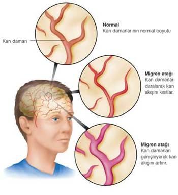 migren-ve-bas-agrisi