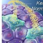 Kemoterapi Nedir? Kemoterapi Ne Demektir? Anlamı