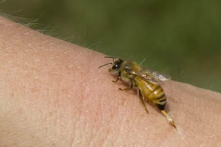 Arı-Sokması-ölmesi