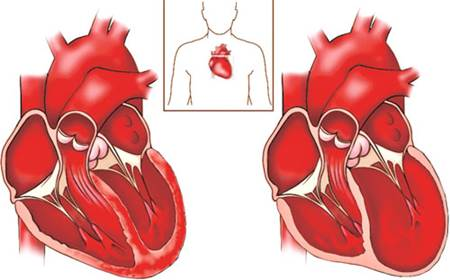 kalp kası nedir