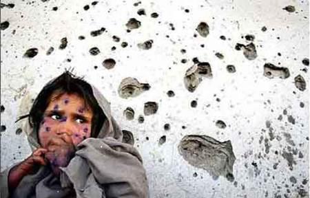savaş insan üzerinde etkisi