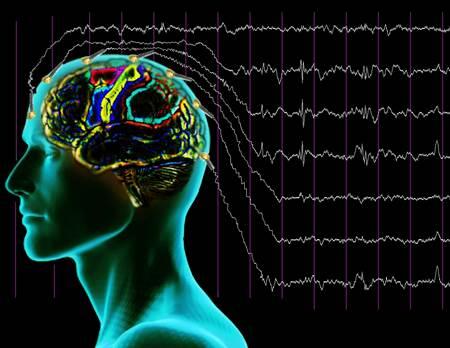Elektroensefalografi EEG nedir