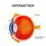 Hipermetrop Nedir? Hipermetrop Ne Demektir? Anlamı